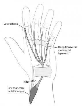 Transfer of the extensor carpi radialis longus (EC
