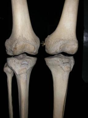 Knees, as seen from front, showing normal valgus a