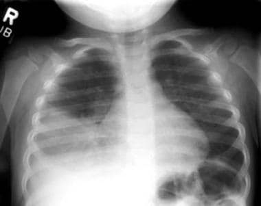 Right lower lobe consolidation in a patient with b