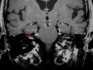 Carcinomatous meningitis. Coronal contrast-enhance