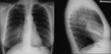 Posteroanterior (PA) (left) and lateral chest (rig