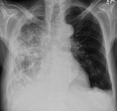 Chest radiograph in a 62-year-old patient with bre