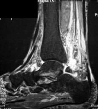 Complete tear of the flexor hallucis longus (FHL)