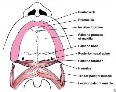 Normal anatomy of the palate.