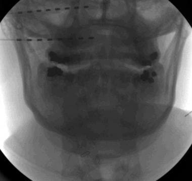 Image 2. A fluoroscopic images of occipital leads
