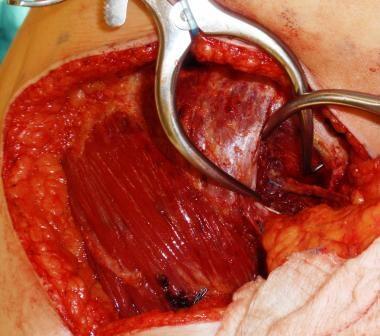 Lumbar perforator dissected out.
