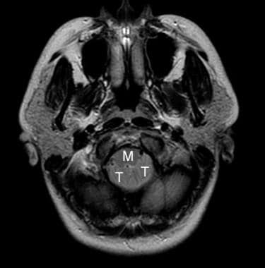 Axial MRI image at the level of foramen magnum in