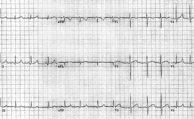 Genetically confirmed long QT syndrome with border