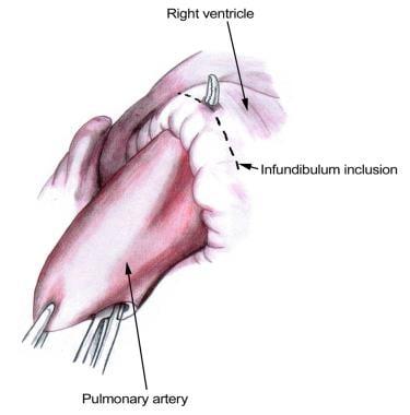 The infundibulum is incised 1-1.5 cm proximal to t