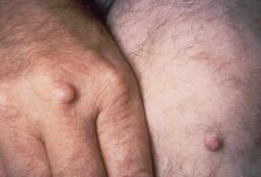 Tuberous xanthomas. Courtesy of Duke University Me