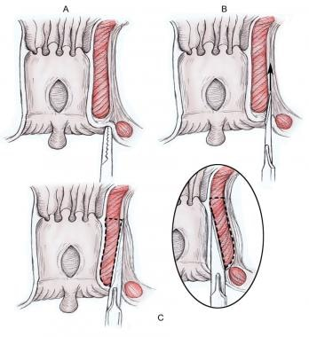Closed lateral internal sphincterotomy.