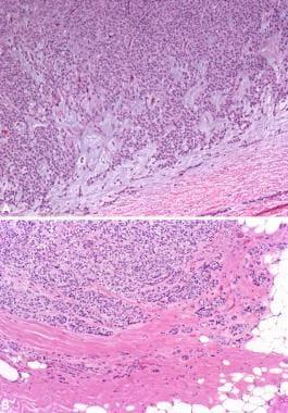 Myoepithelial carcinoma ex pleomorphic adenoma. Im