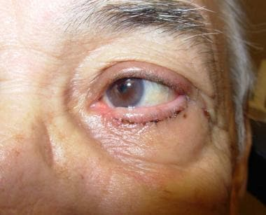 Entropion and Ectropion Repair: Overview, Periprocedural ...