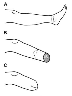 An illustration showing the level of cut (A), the
