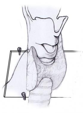 Recurrent laryngeal nerve and parathyroid relation