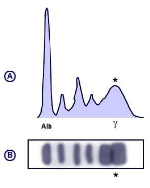 Polyclonal pattern serum protein electrophoresis (