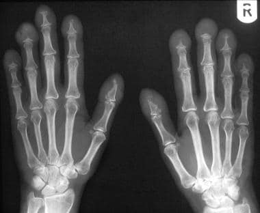 Radiograph of both hands in a 42-year-old man with