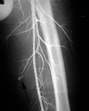 Cut-film angiogram of a young man with an expandin