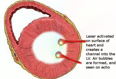 Channels created by transmyocardial laser revascul