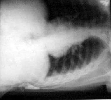 Left lateral view in a patient with reaccumulated