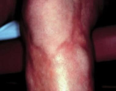 Deep morphea involving the left lower extremity, w