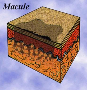 Diagram of a pigmented epithelial macule.