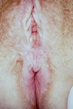 Lichen sclerosus demonstrating classic hourglass o
