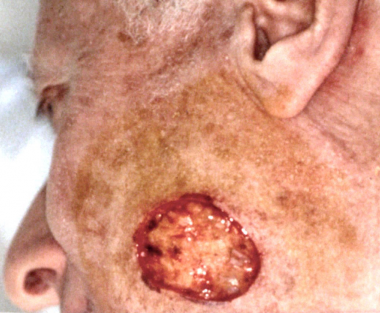 Post-Mohs surgical defect over the left angle of t