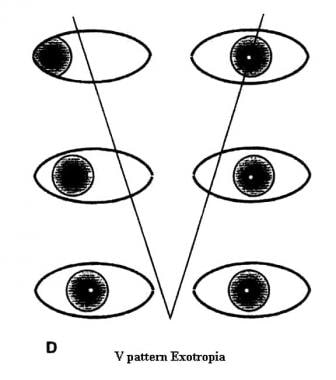 V-pattern exotropia.