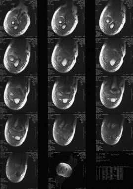 MRI demonstrating Milch type I fracture pattern.