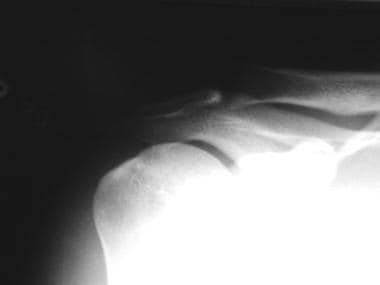 Anteroposterior radiograph of 26-year-old male wei