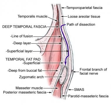 Cross-section of the temporal region showing fasci