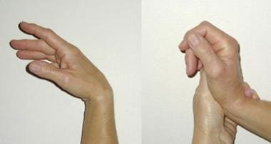 Natural tenodesis is demonstrated by flexing and e