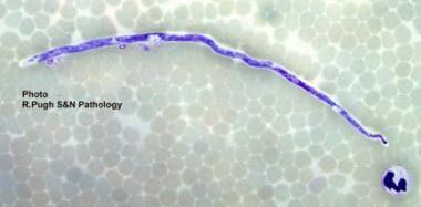 Filariasis. Microfilariae of Mansonella perstans i