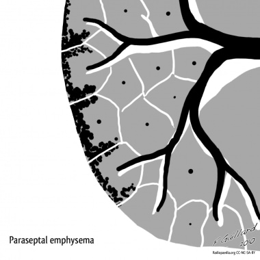 Paraseptal emphysema. Courtesy of Dr Frank Gaillar