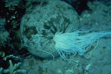 Echinoderm envenomations. The common and toxic sea