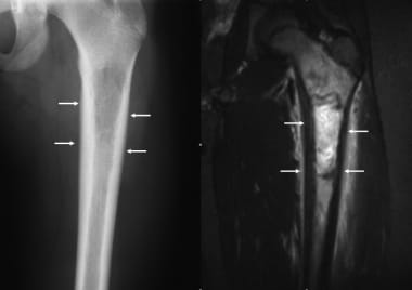 Ewing sarcoma. Anteroposterior radiograph of the f