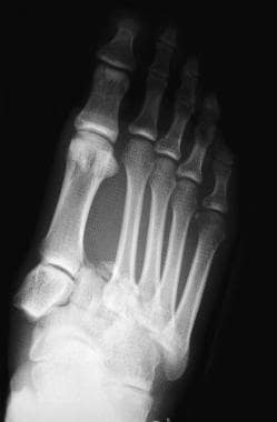 Fractures, foot. Lisfranc fracture-dislocation.