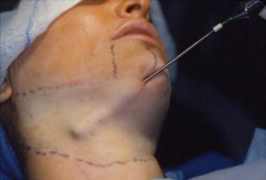 Limits of dissection in the neck with the suction