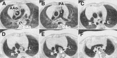 Transverse MRI images in a patient with double aor