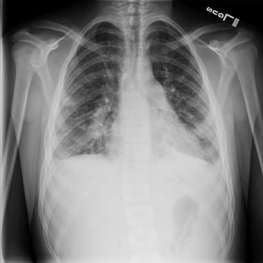 Posteroanterior chest radiograph of a 15-year-old