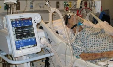 Noninvasive Ventilation Overview Methods Of Delivery