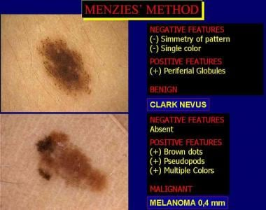 Application of Menzies method to evaluate the diff