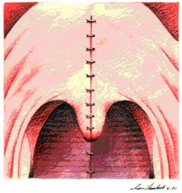 Immediate postoperative view from oral cavity.