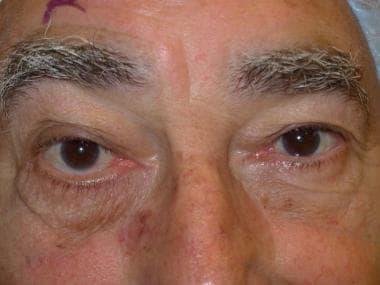 Right lower-eyelid horizontal laxity leading to ec