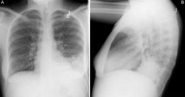 (A) Anteroposterior radiograph from a child with a