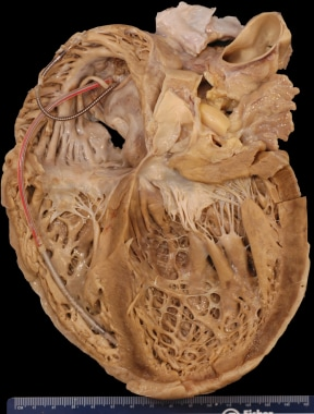 Gross heart specimen from a patient with dilated c