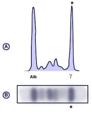 Monoclonal pattern serum protein electrophoresis (