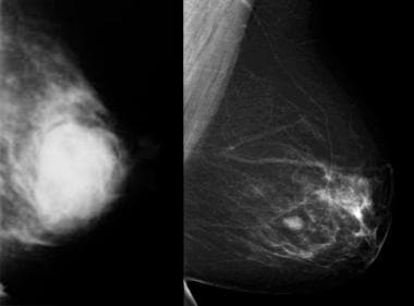 Image from a mammogram shows a benign mass: a fibr