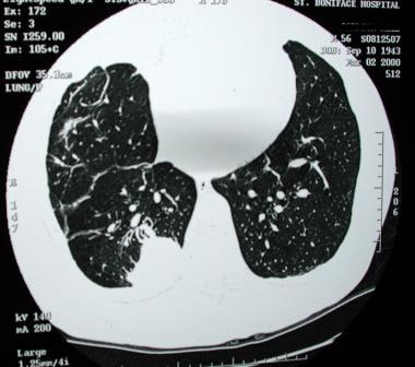 Computed tomography scan demonstrating rounded ate